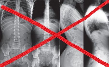 Perché le lastre (ma nemmeno le risonanze  e le TAC) non salveranno la tua schiena?